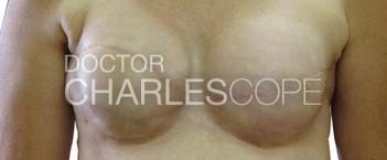 lat dorsi breast recon4 1