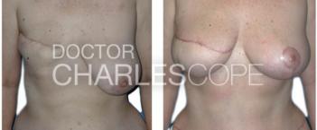 lat dorsi breast recon5