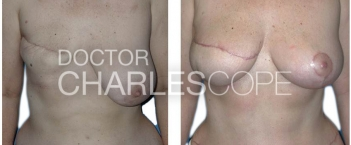 lat dorsi breast recon5
