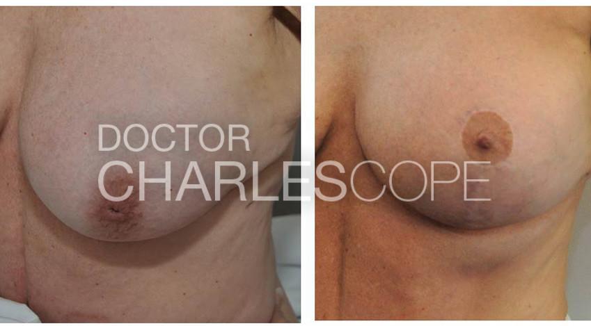 nipple 2