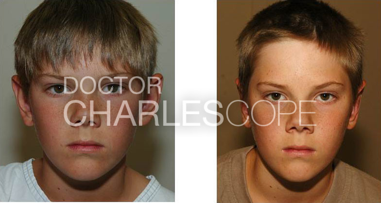 A young male patient before and after otoplasty 01-2