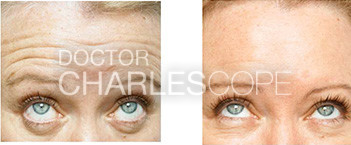 Anti-wrinkle injections before and after 01, forehead and glabella