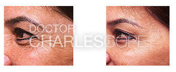Wrinkle relaxers for crows feet 10