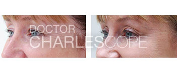 Patient before and after wrinkle treatment with injections 13