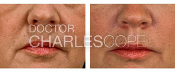 Lip fillers patient before & after 19, Dr Charles Cope
