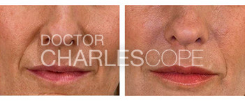 Dermal fillers (lip injections) patient, Dr Charles Cope gallery 20