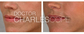Accordion lines dermal filers before and after 25