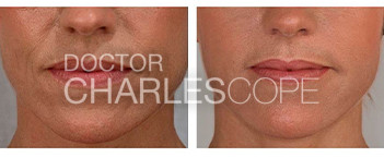 Patient before and after marionette lines treatment with dermal filers 26