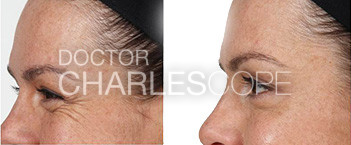 Wrinkle relaxers patient, before & after photo 03, forehead