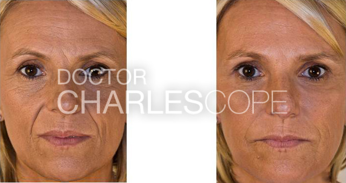 Female patient before and after glabella, nasolabial folds & cheek volumisation (dermal fillers) 36