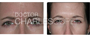 Patient before and after anti wrinkle injections 05, glabella