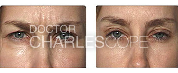 Anti wrinkle injections 06, before & after gallery, glabella