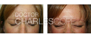 Anti wrinkle injections 08, before & after gallery, glabella