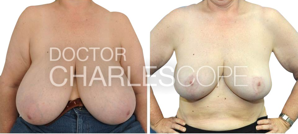 Breast reduction photo from L cup to DD cup, photo 208