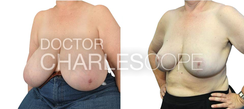 Patient before & after, breast reduction from L cup to DD cup, photo 210