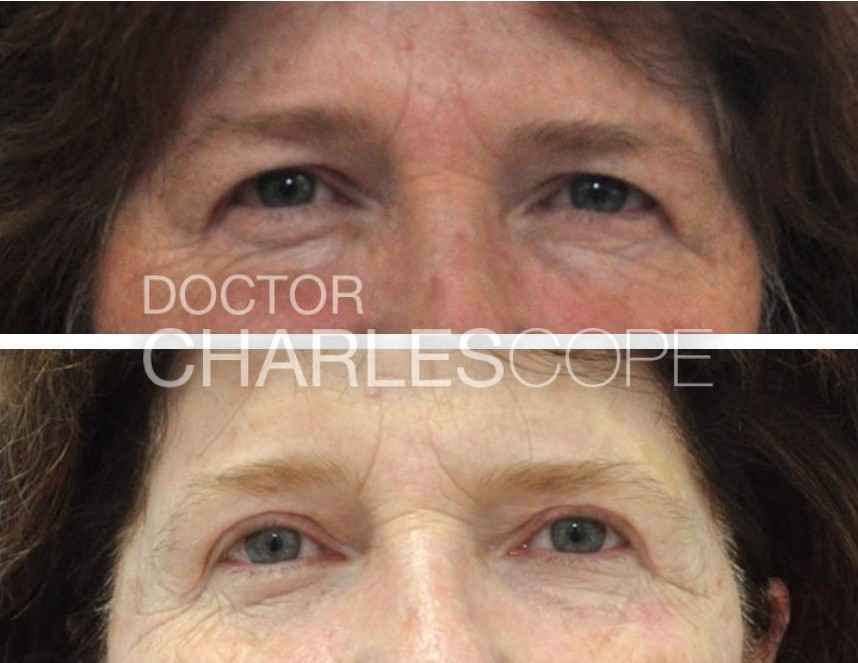 Before and after eyelid surgery (upper blepharoplasty) 2, front view