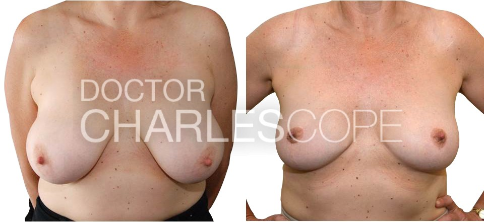 Breast reduction gallery, photo 238, Dr Charles Cope