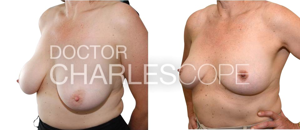 Breast reduction - E cup to C cup, Dr Cope 240