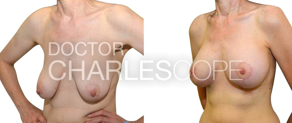 Breast augmentation with lift surgery, patient 51yo before and after 293-1