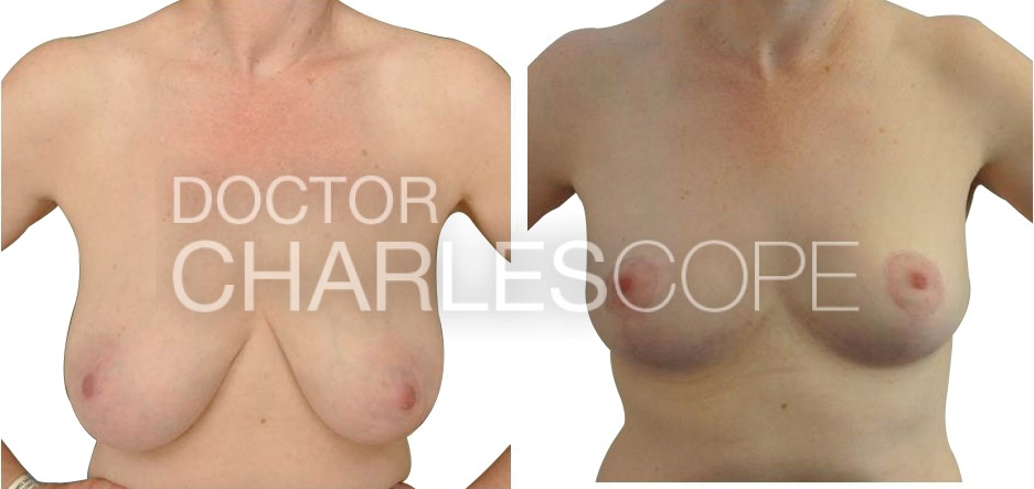 Breast reduction and lift at Dr Cope clinic, before and after photo 78