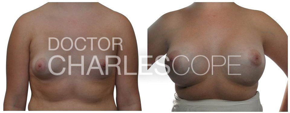 Dr Cope, breasts before and after gallery, 21yo patient